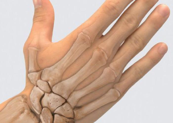 Переломы пястных костей