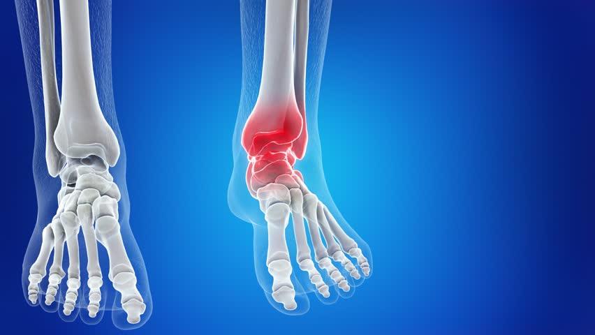 Переломы таранной кости